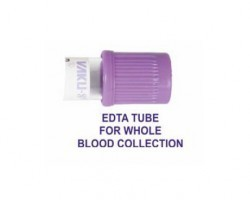 Types of Blood Sample Collection Tubes