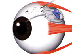 Ophthalmic Implants
